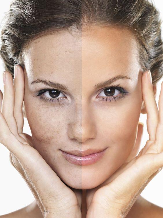 Đắp mặt nạ này 2 – 3 lần/tuần để làn da được tươi trẻ hơn. Nguồn: Pinterest.com
