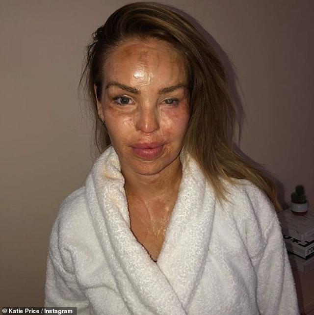 Gương mặt Katie bị hủy hoại hơn 50%, ngoài ra phần cổ và cánh tay của cô cũng bị bỏng nặng.