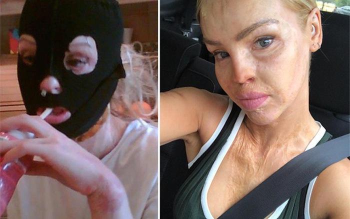 Cô phải trải gần 250 ca phẩu thuật, chỉnh hình khuôn mặt để cải thiện khuôn mặt.