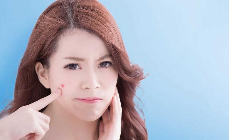 Lựa chọn các sản phẩm dành cho da nhạy cảm để chăm sóc sau nặn mụn, thành phần sản phẩm nên thiên về hữu cơ lành tính, thân thiện.