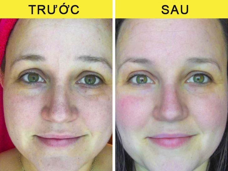 6 tác dụng của vitamin C giúp làm đẹp da không ngờ