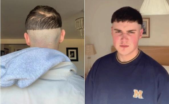 """""""Tôi có một cái nắp trên đầu theo nghĩa đen"""", Harry Ainsworth (23 tuổi) tự mô tả về kiểu tóc mới của mình. Anh thậm chí tự nhận xét mình giống yêu tinh và tiết lộ bị dị ứng da sau khi """"vật lộn"""" với chiếc tondeuse trong nửa giờ. Ảnh:SWNS."""