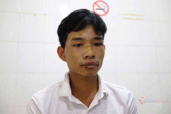 Anh Thoàn mặt đầy vết trầy xước kể lại vụ việc kinh hoàng. Ảnh: Vietnamnet