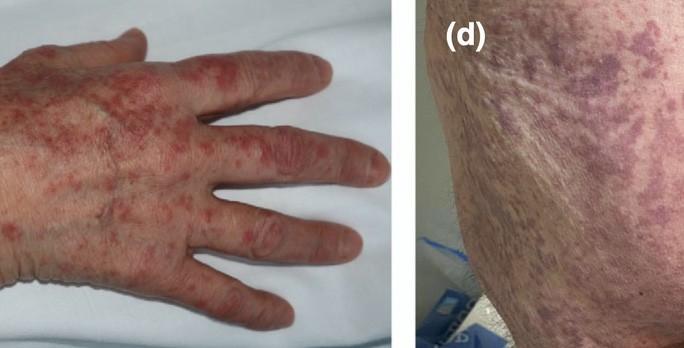 Tổn thương giống hồng ban (trái) và mạng lưới livedo (phải)