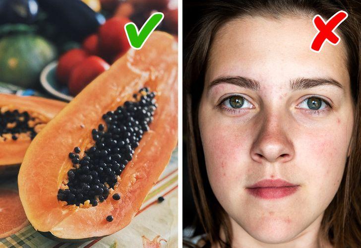7 loại thực phẩm giúp giảm sẹo mụn tại nhà