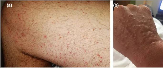 Sẩn quanh nang lông (trái) và tổn thương sẩn thâm nhiễm đầu cực giống mụn nước (phải).