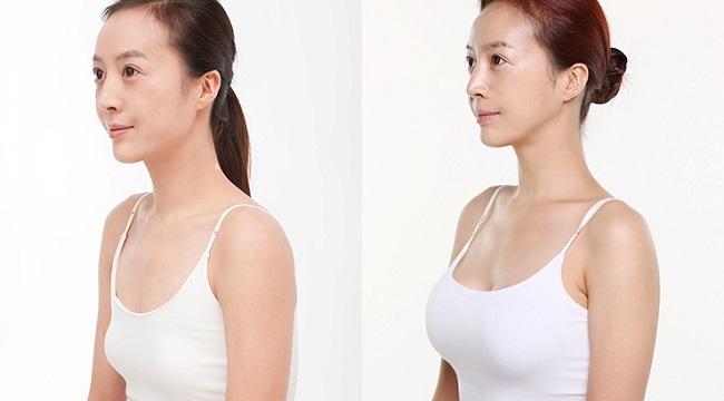 Những nguyên tắc để có một ca nâng ngực