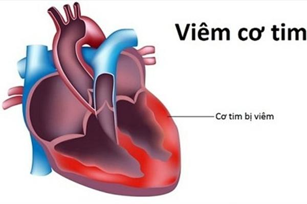 Thực hư virus viêm cơ tim gây chết người đang xôn xao cộng đồng mạng