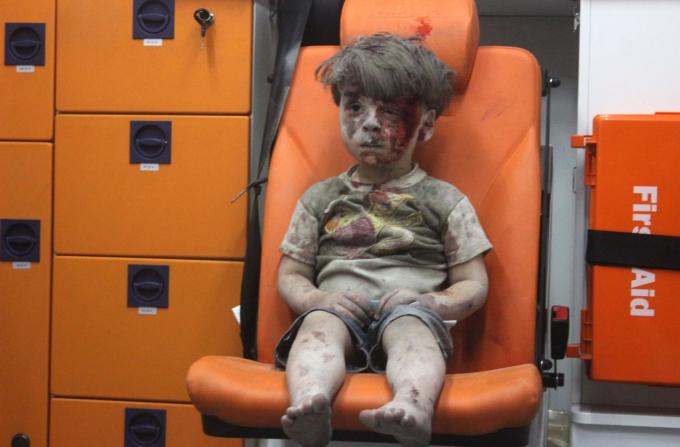 Hình ảnh này được lấy từ video do Trung tâm truyền thông Aleppo đăng tải, cho thấy một cậu bé ngồi trong xe cứu thương sau một cuộc không kích ở Aleppo, Syria, vào tháng 8-2016. Mất gần một giờ để đào cậu bé, được xác định là Omran Daqneesh, ra ngoài từ đống đổ nát, một nhà hoạt động nói với CNN. Cuộc không kích đã phá hủy ngôi nhà của anh, nơi anh sống cùng bố mẹ và hai anh chị em. Cuộc nội chiến ở Syria bắt đầu vào tháng 4-2011 và vẫn đang tiếp diễn - Ảnh: Getty Images