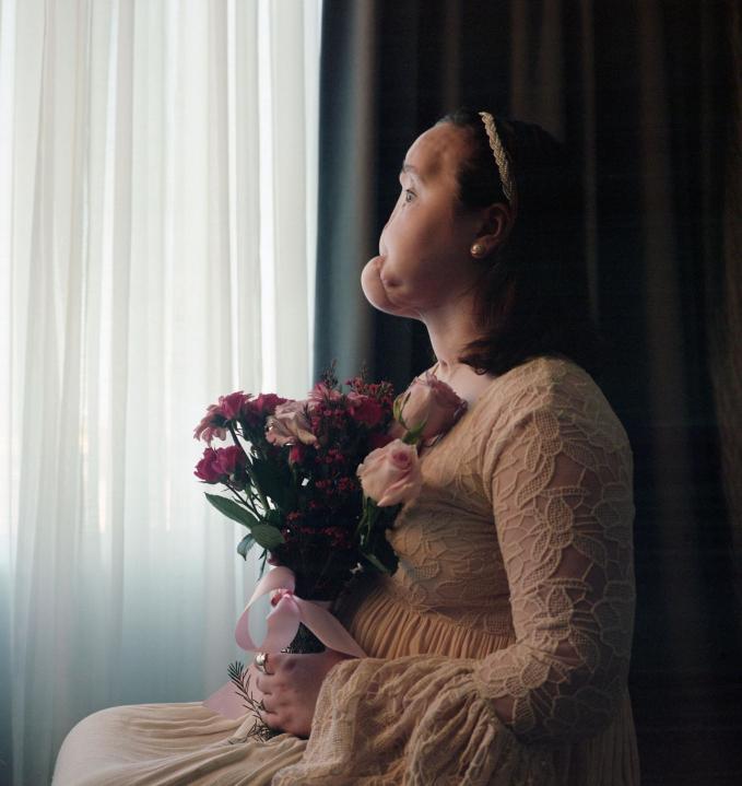 Katie Stubblefield chụp ảnh chân dung vào tháng 11 năm 2016. Stubblefield đã có mặt tại Phòng khám Clevelandđể được ghép mặt.Cô đã tự bắn mình vào năm 2014 khi cô 18. Bây giờ, cô hy vọng sẽ sử dụng cuộc phẫu thuật lịch sử của mình để nâng cao nhận thức về tác hại lâu dài của tự tử và giá trị quý giá của cuộc sống. Ảnh: Maggie Steber / VII / Redux