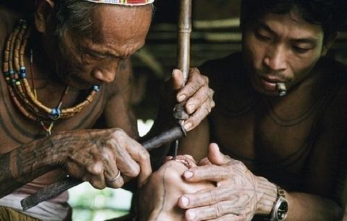 Một pháp sư sẽ đục răng cho phụ nữ mà không hề có bất kỳ sự hỗ trợ giảm đau nào.