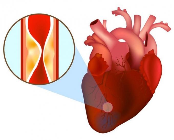 Tỉ lệ nhồi máu cơ tim ở người trẻ đã đang tăng lên đến 10,5% và ở người rất trẻ là 1,8%.