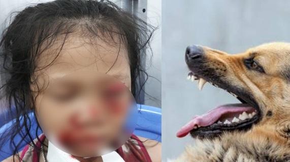 Bé gái bị tổn thương mắt trái, bị toạc mi và mi dưới rách sâu do chó nhà cắn.