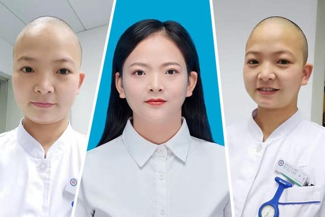 Shan Xia, y tá tại Bệnh viện Renmin, Đại học Vũ Hán, đã cạo trọc đầu để phòng lây nhiễm chéo virus corona.