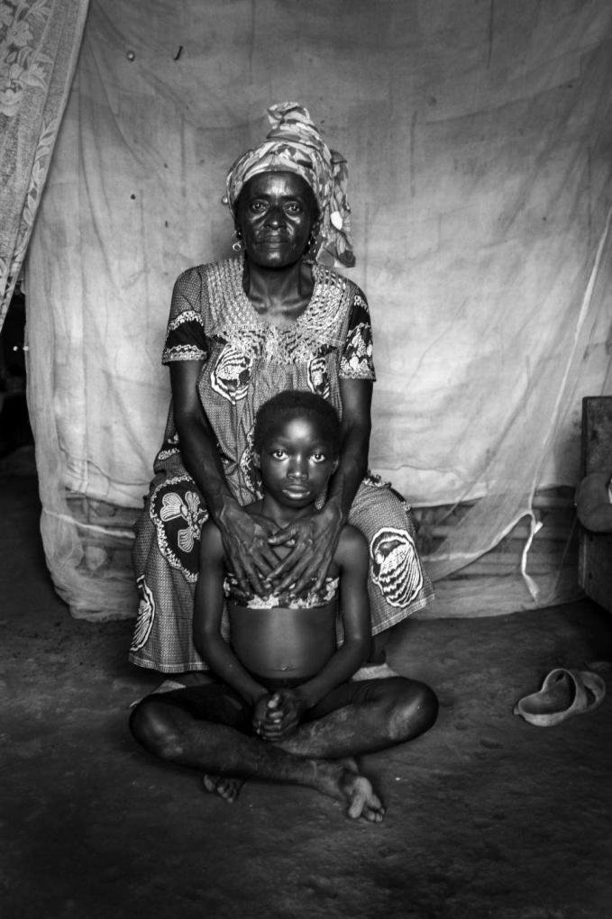 Những bà mẹ Cameroon ủi ngực con gái để