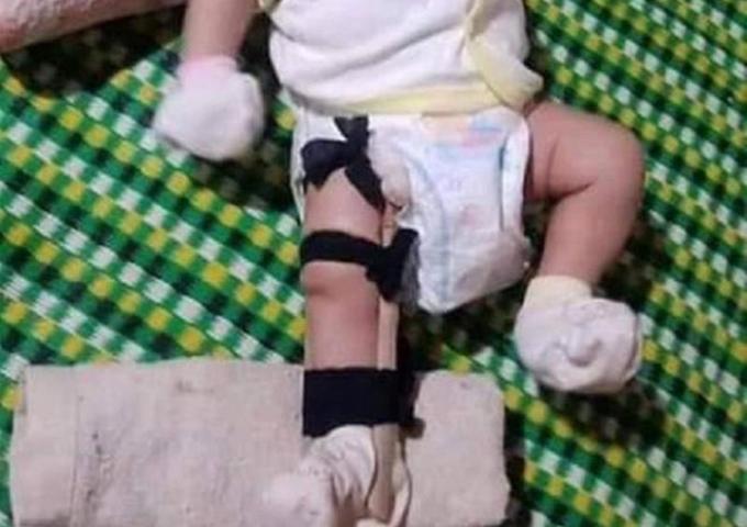 Hình ảnh bé 2 tháng tuổi bị gãy chân nghi bị cha ruột đánh.