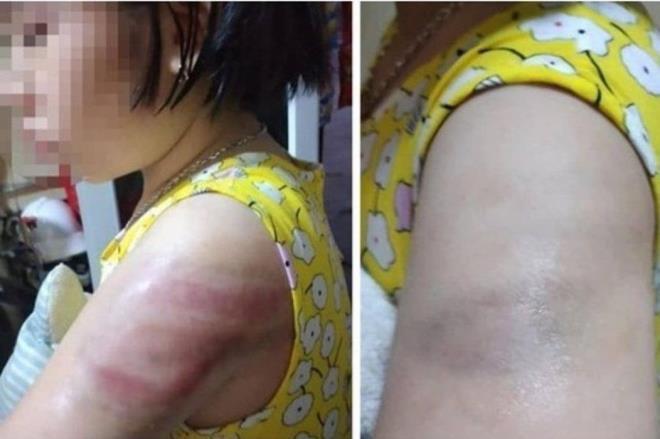 Em học sinh lớp 4, trường Tiểu học Hồ Tùng Mậu (Nam Định) bị cô giáo đánh tím tay vì viết bài chậm. Ảnh: VNN.