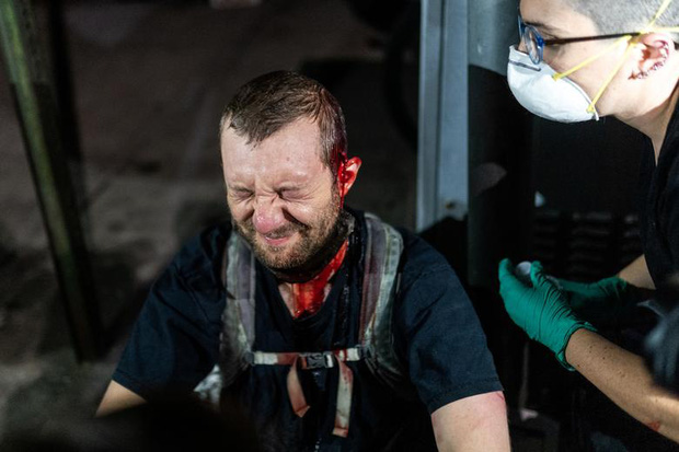 Người biểu tình bị ảnh hưởng từ đạn hơi cay của cảnh sát tại Washington (31/5).