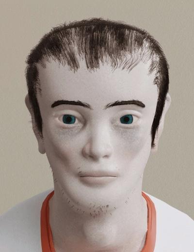 Những vùng hói trên đầu và quầng thâm mắt. Ảnh: buzzfeed.com