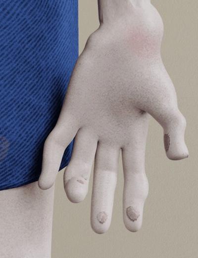 Bàn tay biến dạng.