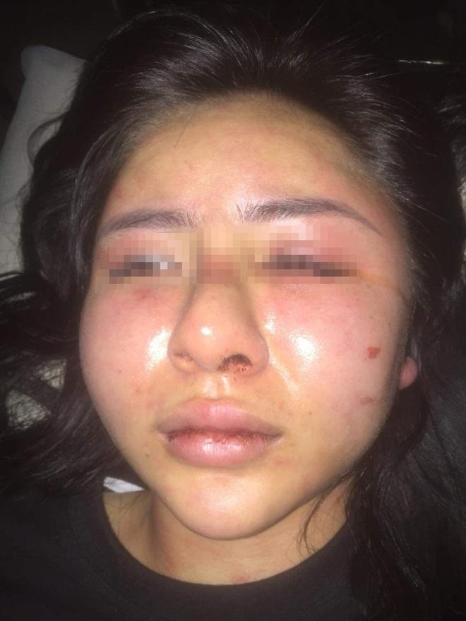 Khuôn mặt bầm dập, sưng húp của nạn nhân sau khi bị hành hung.