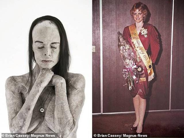 Cô Carol Mayer trong một bức ảnh chụp chân dung (trái) được thực hiện bởi nhiếp ảnh gia Brian Cassey, và bức ảnh được chụp hồi cô trở thành Hoa hậu North Aspley hồi năm 1983 (phải)