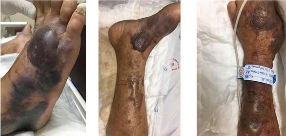 Những vết phỏng nước và hoại tử cỡ lớn trên chân bệnh nhân, sau khi nhiễm phải loài vi khuẩn nguy hiểm từ hải sản sống - Ảnh: Bệnh viện108