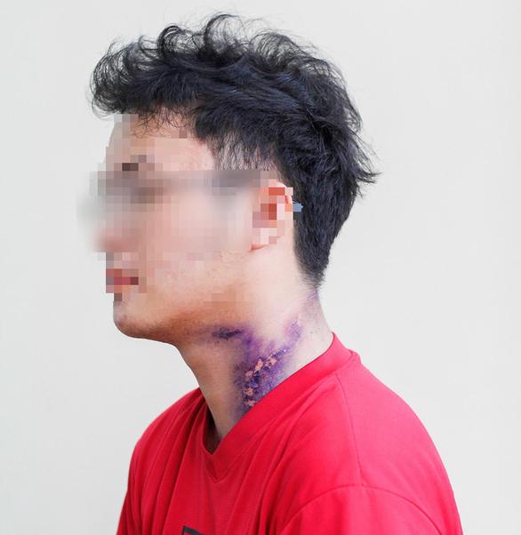 Một sinh viên bị tổn thương da tại nhiều vị trí trên cơ thể do tiếp xúc dịch tiết kiến ba khoang - Ảnh: CHÂU TUẤN