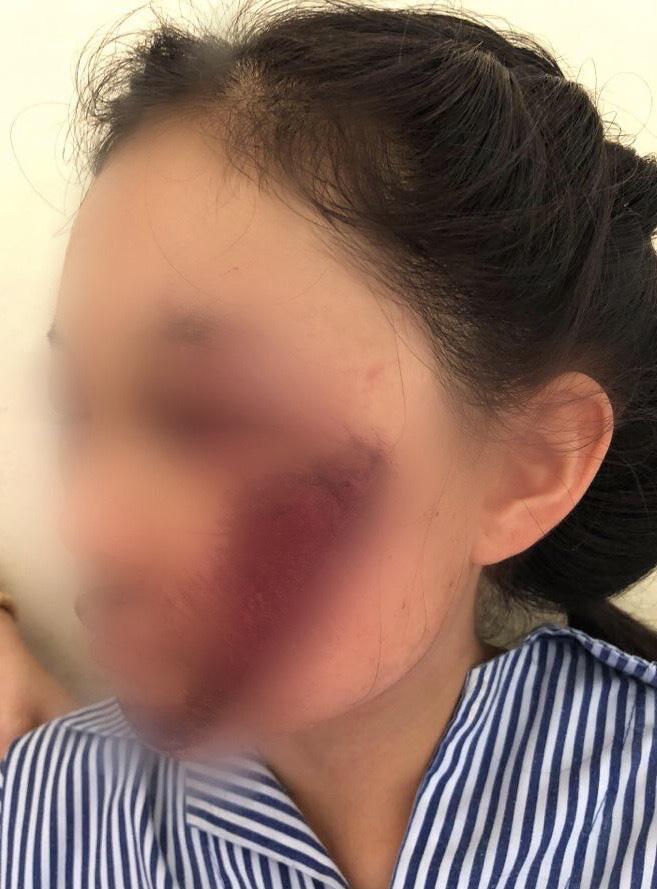 Vùng mặt bị chà xát khiến gẫy xương gò má sau tai nạn - Ảnh: Bác sĩ cung cấp