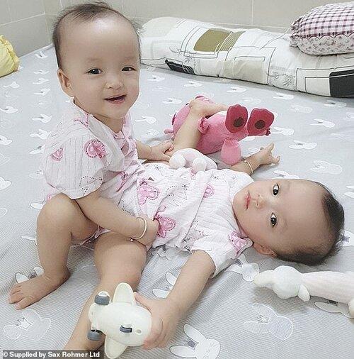 Hai bé song sinh Trúc Nhi và Diệu Nhi.