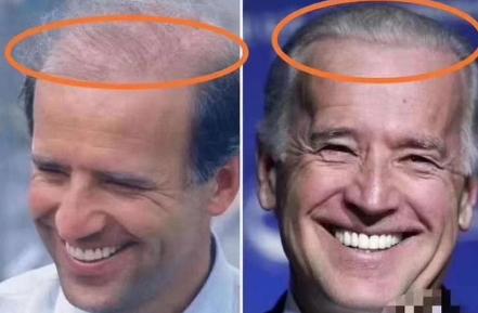 Ông Joe Biden được cho là đã cấy tóc để sở hữu mái tóc dày dặn, bóng mượt hơn.