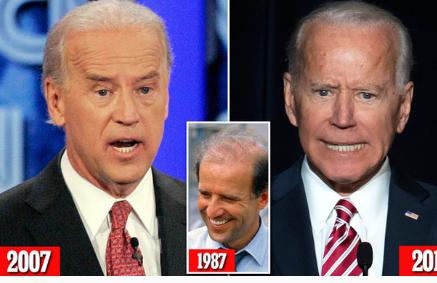 Ông Joe Biden cũng làm răng để được trắng đều.
