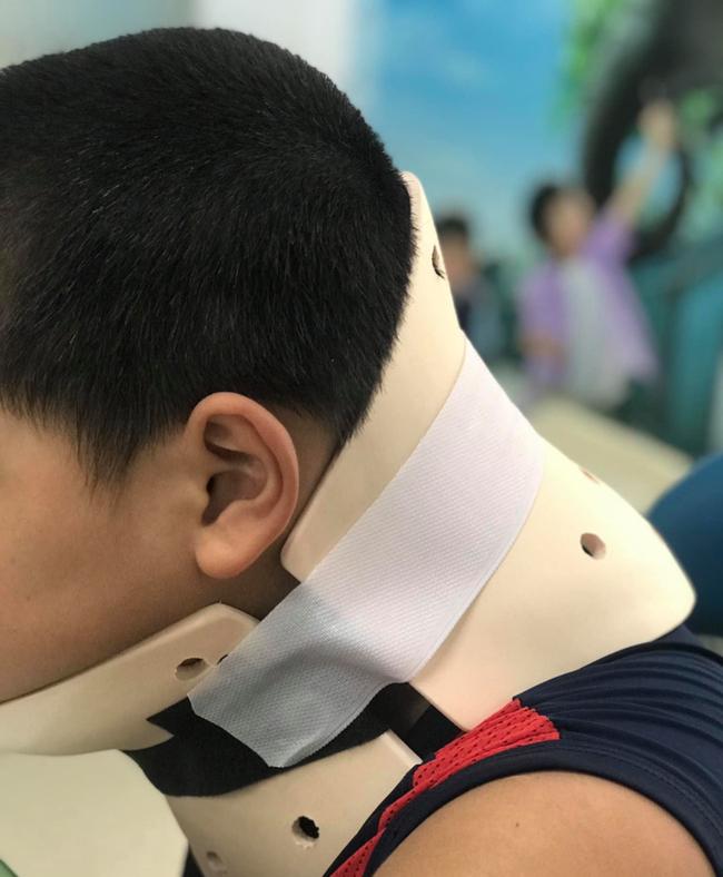 Bệnh nhi học trò treo cổ trên Tik Tok dẫn đến bị vẹo cổ.