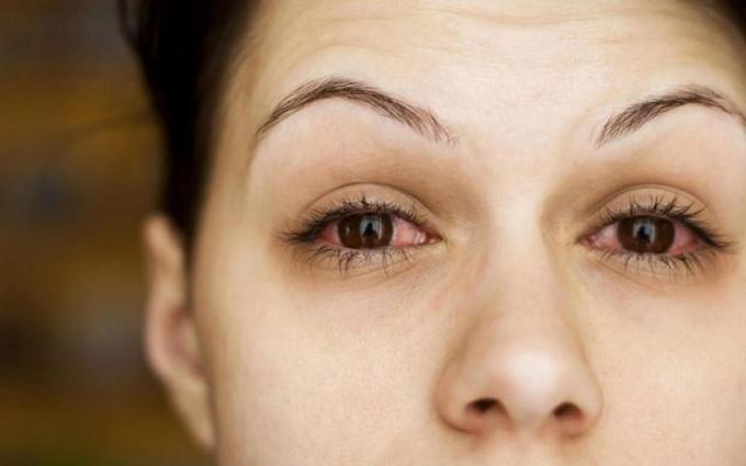 Một số bệnh nhân Covid-19 nặng gặp biến chứng nguy hiểm trên mắt có thể gây mù lòa