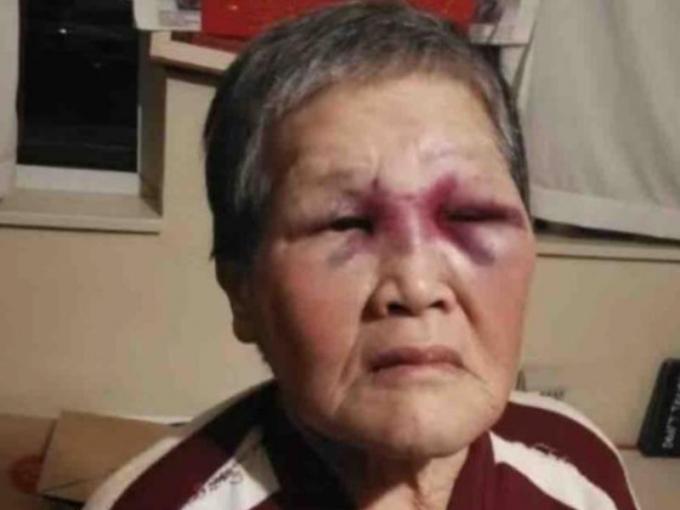 Bà Xiao Zhen Xie. Ảnh: CTV NEWS.CA