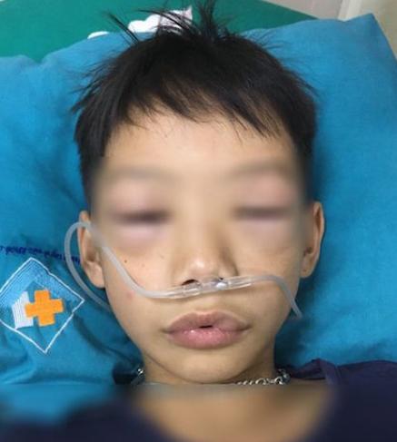 Bé trai bị sốc phản vệ sau khi uống thuốc chữa ho, sốt.
