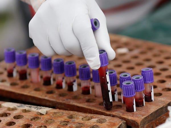 Máu cô đặc, một biến chứng của đường huyết cao, gây khó khăn trong việc lưu thông tới các mạch máu nhỏ (Ảnh: Reuters/ Thomas Mukoya).